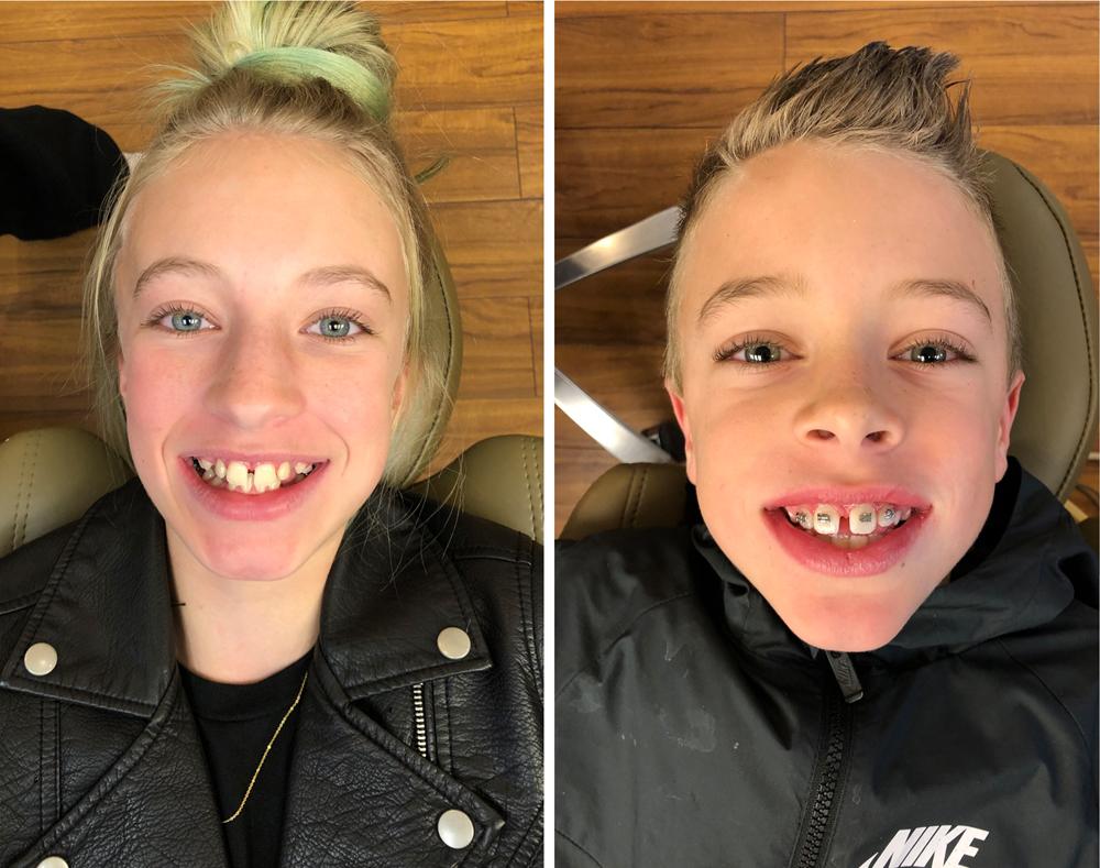 kailee wright Ellison Orthodontics